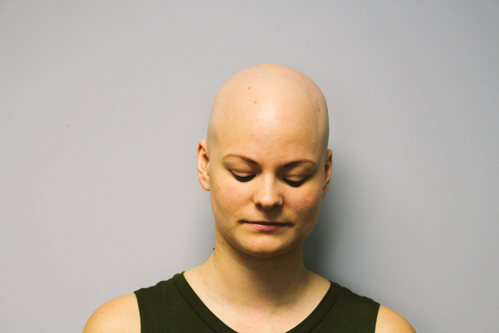 Alopecia Totalis In Women Www Pixshark Com Images